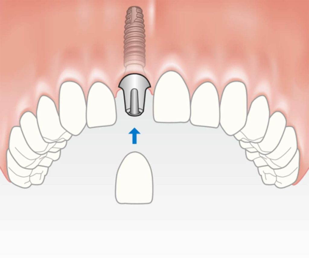 Das eingesetzte Implantat mit der neuen Zahnkrone