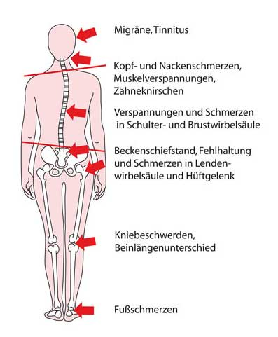 Kiefergelenkserkrankungen